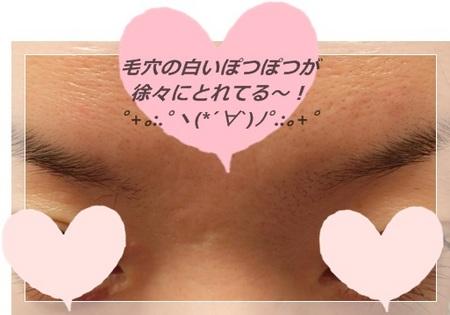 aaマナラくちこみ1.JPG